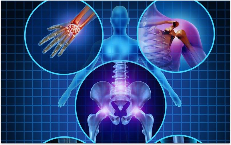 Arthritis Check