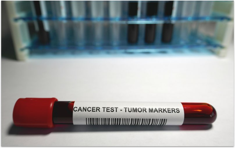 Cancer Check – Women